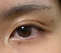 すっぴんの目です これが蒙古ひだというやつですか? 若干目付きが悪いように見えてしまいます…整形以外で治す方法はないのでしょうか?