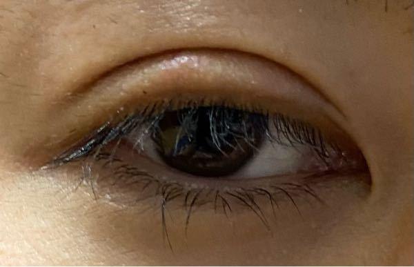 TAクリニックってやばいですか。 私はTAクリニックで、眼瞼下垂の修正と二重形成の手術を受けましたが、4ヶ月が経過しても腫れていてハム目なのです。 末広型の二重でお願いしたのですが、写真のように...