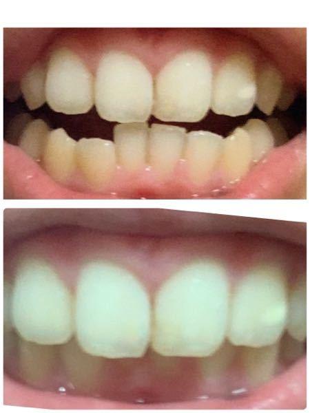 【歯並びの写真あり閲覧注意】お礼250枚。歯列矯正についての質問です。 上の写真は上の歯と下の歯の写真、下の写真は笑った時の写真です。 写真を見るとわかる通り下の歯並びがめちゃめちゃ汚いで...