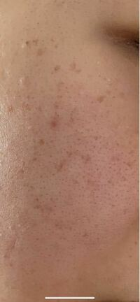 高校三年生です。 この毛穴とシミってどうやったら消えますか。 皮膚科の薬2年使っても治らなかったので、皮膚科以外でないですか( ; ; )