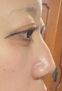 目が大きいとは言われるんですけど、出目がほんとにコンプレックスです。どういう整形をしたらましになりますか?整形って言ってもものすごい高いのはできないです( .. ) メイクとかでもましになるほうほうあれば教えてください(T^T) 眉毛と目を近づけたいんですけど、前から見たらいい感じでも横から見たら瞼にかいてる?!って感じになります( ˙_˙ ) アイラインめっちゃ長いのは気にしないでください笑