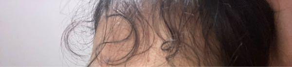 前髪の内側が本当にうざくてうざくてうざくてたまりません!前髪全部をおろしても突き出てきます。どうしたら治りますか?!