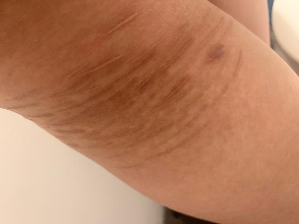 ※閲覧注意 写真は自傷行為の傷跡の一部です。 剃刀などの刃物で皮膚を切っていました。 目立たなくなった傷もありますが、多くが白くなったり、中には紫色に変色したものもあります。 おそら...