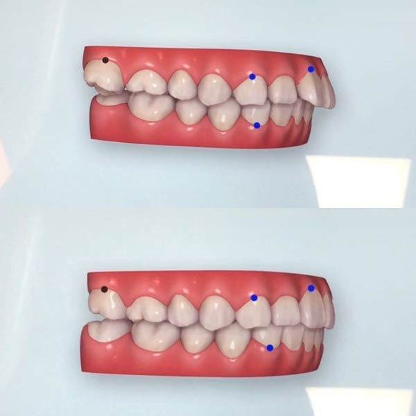 インビザラインをすることにしました。 出っ歯ということと、右の奥歯上下が親知らずが生えたことで押されて傾いてしまいました。下は内側に、上は外側に倒れています。 先生には「抜いてもあまり動かない...