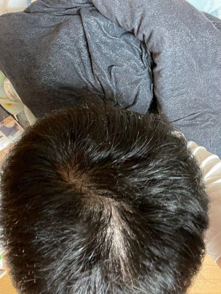髪の毛をかき分けたりしたらすぐ頭皮が目立ちます。 これはハゲているのでしょうか? 現在大学生です。