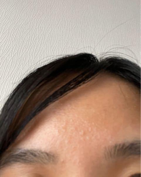 高校生です。最近前髪が似合わないと言われました。実はそう自分でも思っていたので、明日前髪を切らずに流して学校へ行きたいと思っています。しかし、写真のようにおでこにプツプツがあって、少し恥ずかしいです。 このプツプツは前髪があった頃からずっとあって、なかなか治りません。 どうしたら治るでしょうか?また、プツプツ隠すためにまた前髪を作るか、プツプツがあっても自分に似合う前髪にするか、どちらがいいと思いますか??