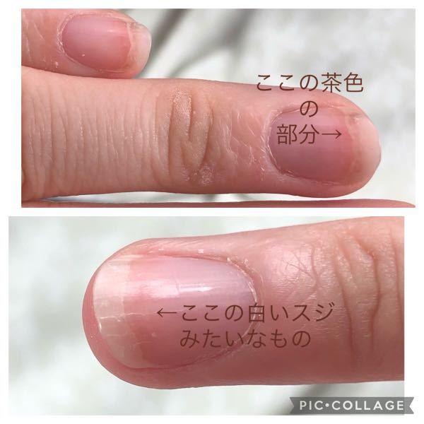 爪について気になることがあります。気分を悪くされたらすみません。爪を伸ばしてたら白いスジみたいなもの、茶色に変色している部分があり、悩んでいます。綺麗な爪に憧れていたので。 これは原因や直す方法はあるのでしょうか? 中傷はいりません。
