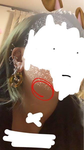 この写真の赤く囲ってるエラと首のあいだ? にポコっと皮膚の中にしこりみたいなのがあります。 本当にいまさっき見つけて、触ってみたら痛いです。 まだ見た感じ赤く晴れたりとか熱は持ってません。 癌...