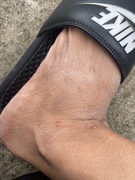 足の乾燥肌について。 ※写真汚くてすみません…。 足全体がカサカサしてます。 お風呂上がりにボディークリームを塗っているのですが一時的には良くなるのですが、数時間経つとすぐにまたカサカサしてしまい皮が剥けます。 足の裏もカサカサしてお風呂上がりは角質がポロポロと落ちます。 汚くて悩んでます。 スベスベ肌になるにはどうしたらいいでしょうか。 皮膚科に行くべきでしょうか。 宜しくお願い致します!