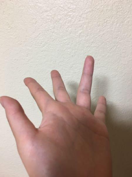 1ヶ月ほど前に薬指を骨折しました。一週間半ほど前に固定は外れたのですが、薬指が写真のように真っ直ぐに伸びません。写真の位置から後ろ側?に指が動かせません。時間が経ったら伸びるようになるのでしょう...