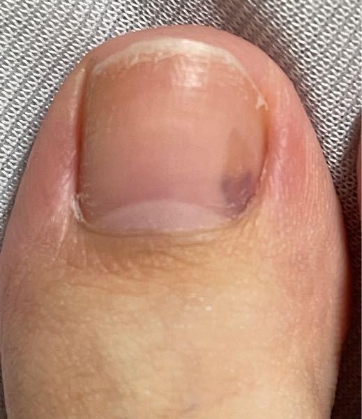 閲覧注意 右足の親指です。 これって内出血みたいなものですか? 1週間ほど前にきついスニーカーを履いた時親指がすごく痛かったのを覚えています。 そのせいでしょうか。 軽く押すと少し痛いです。 ...