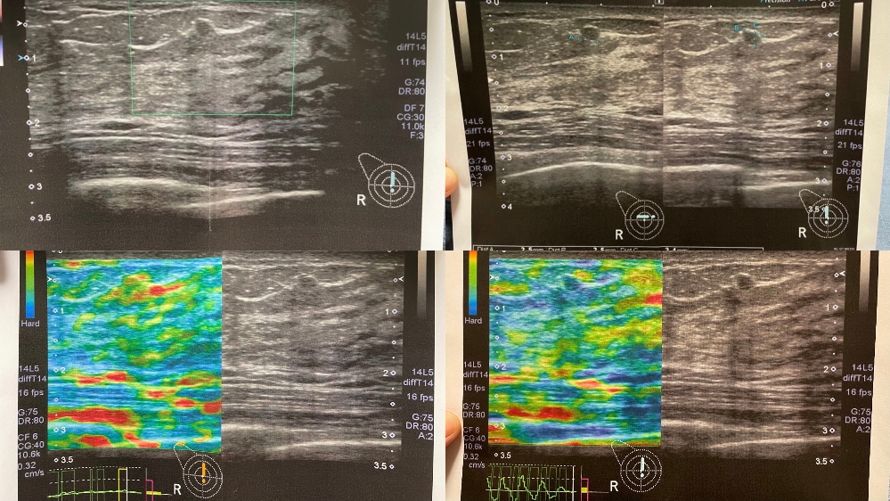 私は43歳です 乳がん検診に行ってきました。 画像を見てわかる方教えて下さい。 画像が見えにくいかも知れませんが どうか宜しくお願い致します。