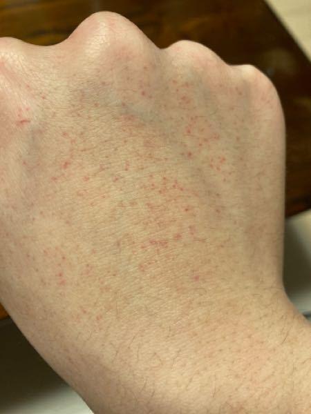 筋トレで手首を締めてつけて使う道具を使用すると手の甲に赤い斑点が浮かび上がるのですが、これはなんですか。