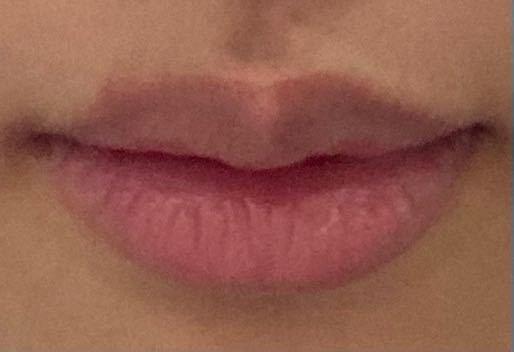 写真のように、唇が黒くくすんでいるのが悩みで、くすみをとばして、血色感のある唇になれるティントを探しています。ピンク系のもので良いものがあれば教えていただきたいです!学生なので、スクールメイクに使える ものを紹介していただけるとありがたいです。