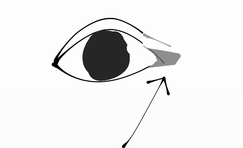 目尻にこのような色素沈着の楕円があります。 濃くあるせいで目尻の窪みが強調されていてすごく嫌です。 レーザー、クリームなんでも良いので 色素沈着が薄くなる方法を教えてください。 実際に行って色素...
