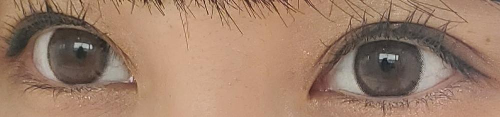 至急!この目をみてどう思いますか?整形した目みたいですか?