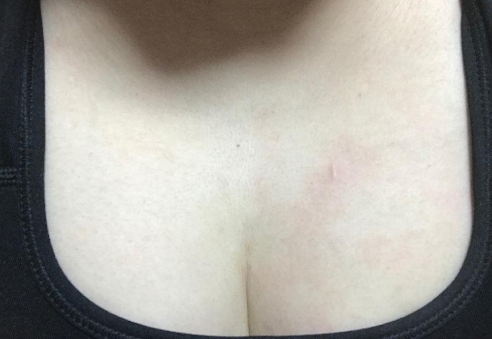 胸上部にしこり?というか膨らみみたいな縦長のものがあり、先程気付きました。 痛いわけでもなく痒いわけでもなく、すこし触ったので赤くなりましたが色がついたような感じもありません。 猫にひっかかれた...