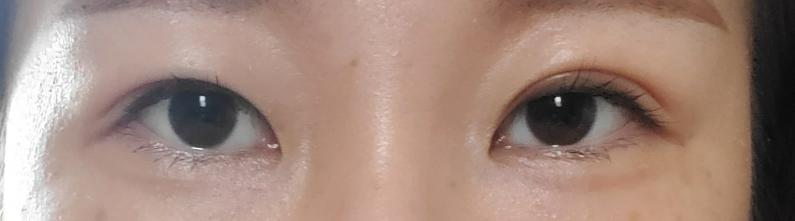 この目は、目尻切開すればどれぐらい大きくなりますか?