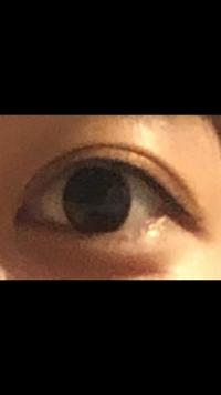 この目は整形されていると思いますか?