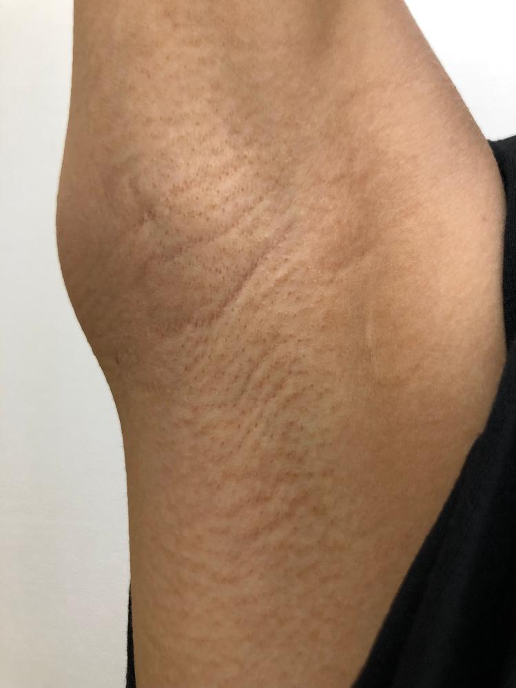 針脱毛による色素沈着、鳥肌のようなものは治りますか? 8年ほど前に皮膚科で針脱毛をしてから、写真の通り毛穴が目立つようになってしまいました。 当時、脇の臭いに悩んでおり針脱毛すると臭いが軽減されると聞いて、エステの光脱毛から針脱毛に変えました。 確かに、臭いは軽減された気がするのですが… 今はノースリーブが着られないほど脇が汚くなってしまいました…。 当時、1分440円?とかで高くて施術の際もかなりの痛みで。 未だに脇の神経がピリピリする事がたまにあります。。。 もう、毛は生えなくなったのですが、細かい毛が生えてるから毛穴が目立つのかな?と思いその後レーザー脱毛や光脱毛もしましたが、全く改善されず、諦めてました。 何か良い方法ありますか? 美容皮膚科に行きたいのですが、金額が結構かかりそうなので行けそうにありません…泣