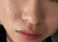 化粧してこの肌。 どうしたら綺麗になりますか... ずっとずっと悩んでます。 皮膚科に行ってみましたが効果なく。 エステにもたくさんお金を注ぎ込みました、、 一生この肌と付き合っていかないといけないのでしょうか。。。 どうすれば綺麗な肌になれますか? 上手く隠せるお化粧情報でも構いません! 教えてください。・゜・(ノД`)・゜・。