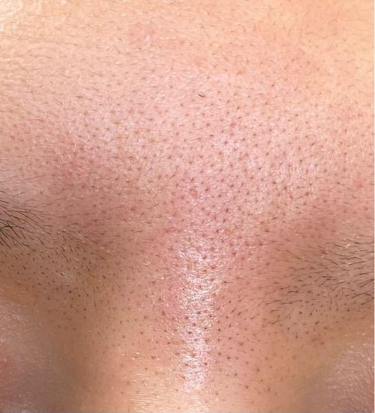 これは私の眉間なのですが、とても赤く、毛穴が黒いです。そして開いています。 10代後半で、敏感肌です。 学校にはこの毛穴を隠すためにいつもノンコメドジェニックの化粧品を使い隠しています。 まわりのこがまだすっぴんでいるのに私は常に赤みは大丈夫か、 毛穴汚くないか気にしています。 もちろん、すっぴんで買い物とかにもいけないです。 どうしたらこの眉間の赤みと黒ずみ、開きをなおせますか?? 誰でもいいので教えて頂きたいです、 よろしくお願いいたします。