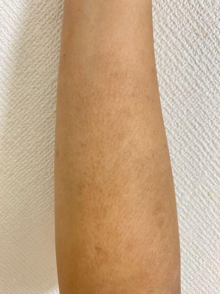 2年ほど前から、両腕にまだら模様の黒ずみ?のようなものができてしまいました。 肌が汚いことが本当にストレスで、夏でも長袖を着ています。 これは皮膚科に行ったら治るものなのでしょうか? また、病名...