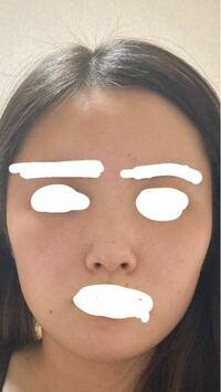 鼻が残念と言われますが具体的にどこか教えてください。