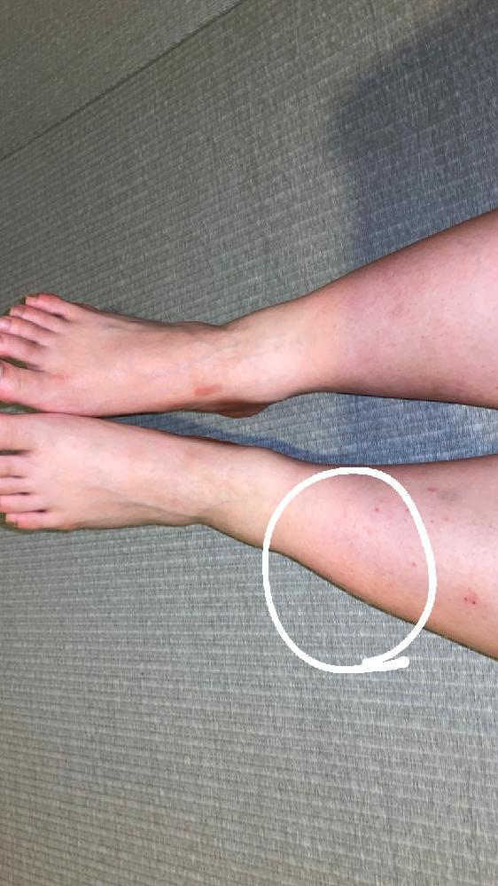 こんにちは。 ソフトボールでピッチャーをしています。1ヶ月前に足を捻って休養してたのですが、1週間前から練習を再開したところ、また、足首と脛の外側? (丸の部分です)が痛くなってしまい、夜間痛が...