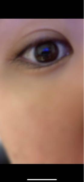 まぶたについて質問です。僕は普段、左目はずっと二重で 右目は奥二重っぽい感じです。 それで、体感ですが 2、3ヶ月に1回 4〜5日ぐらい 右目が 左よりもパッチリした二重になります。 どういった...