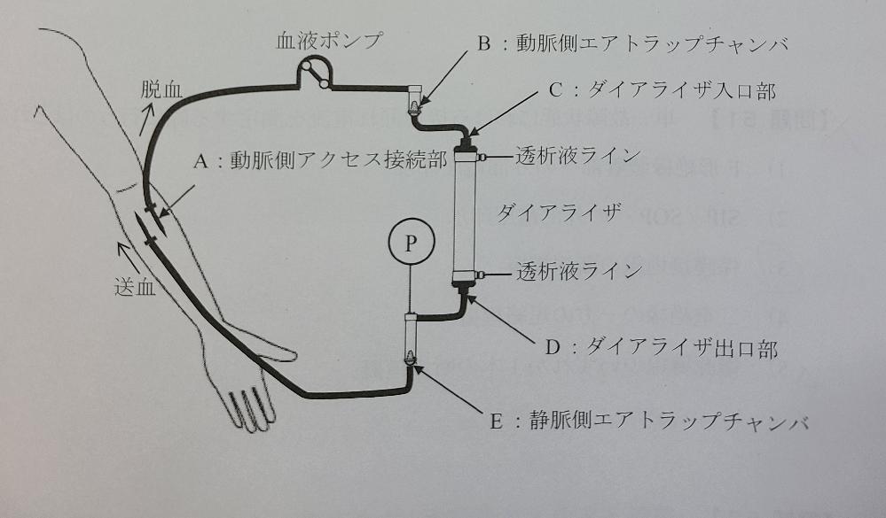 ME2種の問題です。 血液透析中の回路で、静脈圧(Pで測定)が上昇した原因が血液凝固のとき、どの箇所で凝固が生じたかという問題の解説をお願いします。 (解答はEだと思います。)