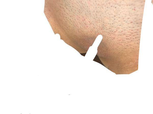 【お見苦しい写真あります】 医療脱毛でvio含めた全身を脱毛してもらうのでそれに向けてvioをシェーバーで剃ったのですが元々毛が濃ゆく太い為ツルツルになるまで毛が剃りきれませんでした…。写真のように目に見えるほど毛がチクチクしている状態です(><) みなさん剃毛すると直後はツルツルになるものなんでしょうか…?少し赤みも出たのでこの状態でクリニックに伺うつもりですが、ツルツルに剃れる方法などあれば教えていただきたいです…。 あとiの部分の黒ずみが剃ってみて酷いのが分かったんですが対処法や改善策教えていただきたいです。 お見苦しい写真すみません(><)