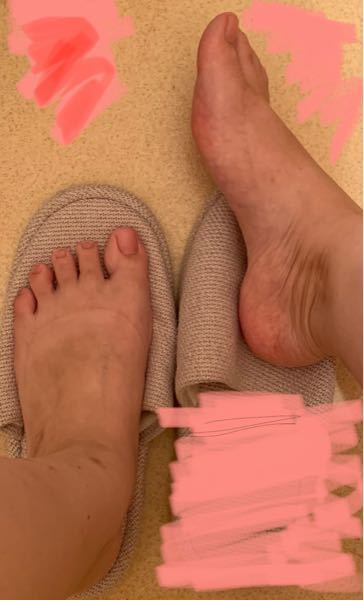 汚い写真なので閲覧注意です。 見た感じこの足は幅広甲高と言えると思いますか?