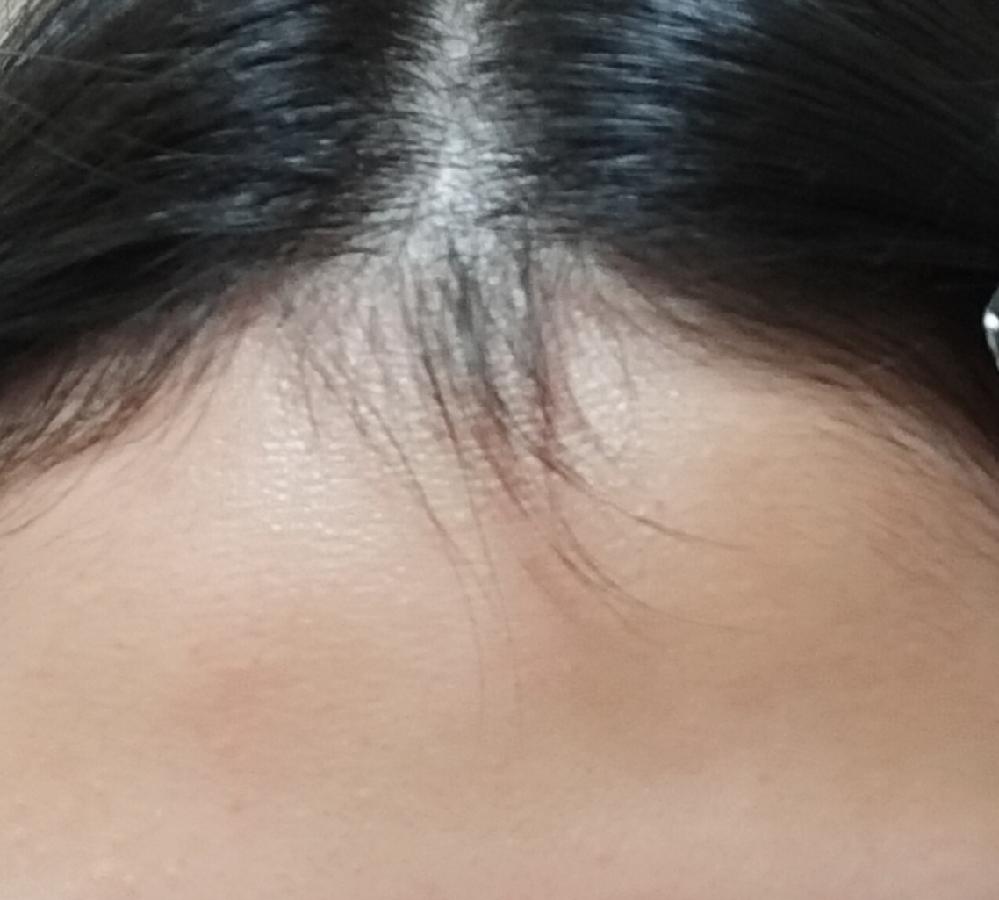 生え際に髪の毛と同じぐらいの濃さなのに全然伸びない毛があります。普段、センターパートにしているのでどちらかに寄せようとしても寄らず、変な感じになってしまいます。 適切な処理ほ仕方、セットの仕方などあれば教えてください。