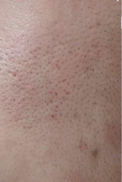 毛穴どうしたらいいでしょうか、、 小学生の頃からマスクをつけ現在中3です。スキンケアもあまり分からずほっておいたらこうなりました。 いいスキンケア方法ありませんか? 顔の毛濃くなりそうで怖くて剃れません、、 毛穴に効く化粧水とか教えていただけると嬉しいです!つける順序とかもお願いします。
