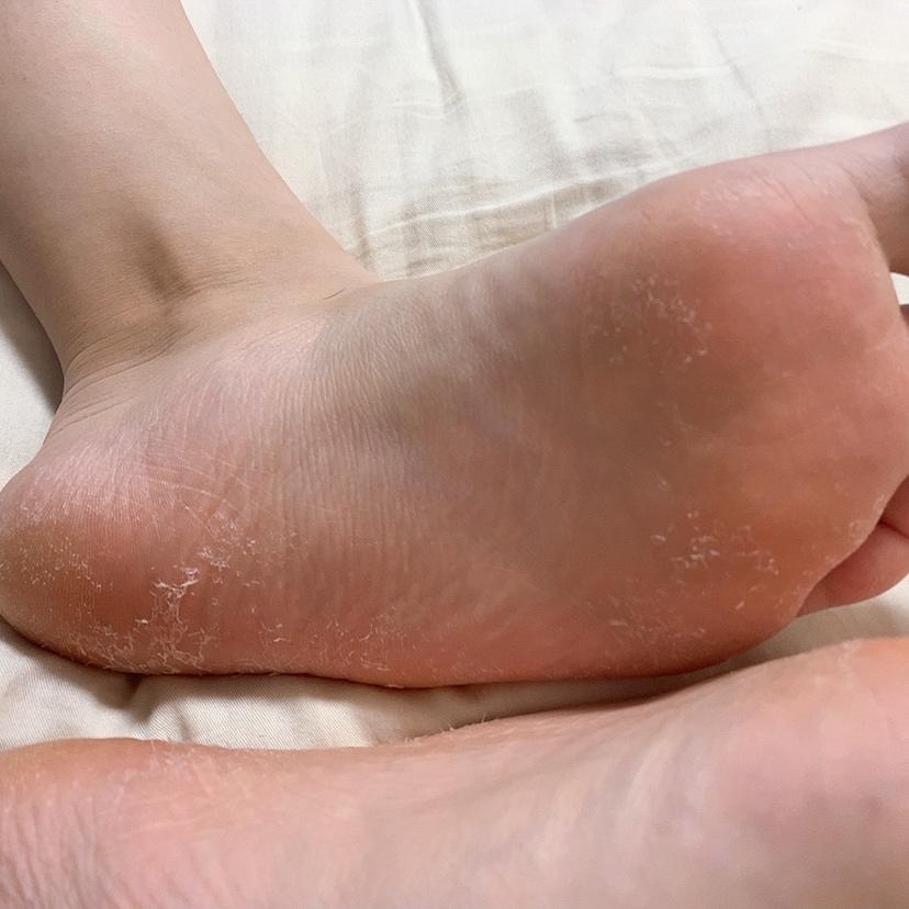 汚い画像ですみません。 足の裏の皮がよく剥けます。これは水虫でしょうか? 大きく剥けるというより、細かく角質が落ちるという感じです。