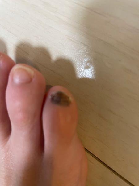 小指がずっとこの色です。 どうしたら治りますか? ネイルをしてたのですが、取ったら爪の中までグレーみたいな色になってました。 なんなのでしょうか。