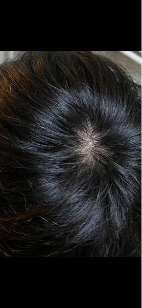これはつむじハゲですか? つむじ周りの毛は他の部分と比べて毛が柔らかいような感じがします。
