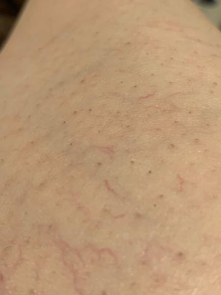 1週間ほど前に全身の脱毛(3回目くらい) をして脚にシミっぽいのができてるのですが これはターンオーバーですか? 脱毛後、数日間日光は浴びてません