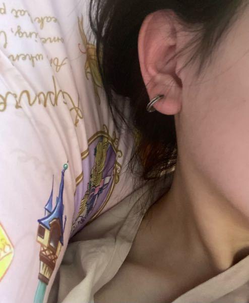 至急お願いします。 久しぶりにピアスを通したら痒くて仕方ないです。 汁みたいなのも出てきます。 数日つけるのをやめたら元に戻ります。 両耳かゆいです。 右耳は去年の7月に、左耳は11月ごろだったと思います。 写真添付します 耳が真っ赤になってしまいます。 アレルギーなんでしょうか。 母姉×2は金属アレルギーで自分だけアレルギーじゃないと思っていのですがアレルギーだと思いますか? プラッチックのピアスはもっと痒くなったのでアレルギーの可能性は低いと思ってます 膿んでるんでしょうか。 治し方とかありますか。 ここ半年ずっと悩んでます枕が汚れます