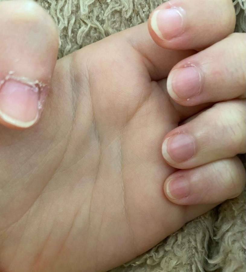 育爪を始めたいのですが、何をすればいいかわかりません。 方法や道具など教えてください! 道具はあまり高くなく手軽に買えるものがいいです。 写真は今の私の爪です。