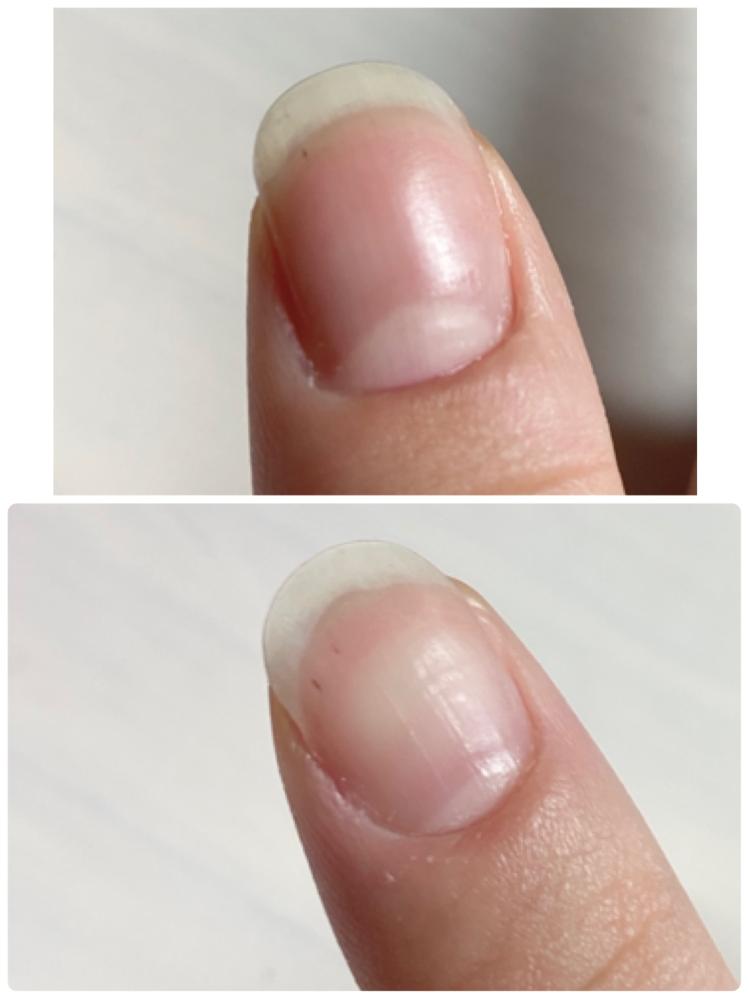 爪に黒い線みたいなのが入ってるのですがこれって何なんですかね、、、?ゴミなのでしょうか。 ビタミン不足など原因が分かる方いらっしゃいましたら教えて下さい!