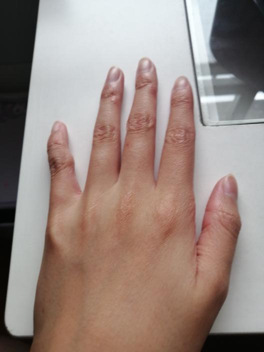 このシワシワな手を綺麗にする方法はないですか??皮膚科とか何でもいいので。。。 ちなみに中一です。