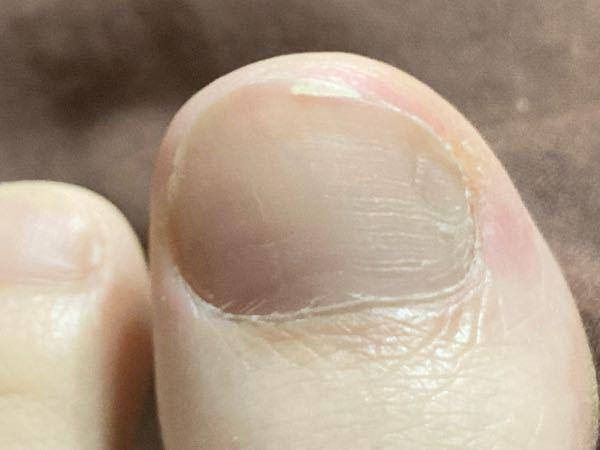 脚の親指の爪を誤って深く切り込んでしまいましたが、切り落としてはいません。 このままにして切り落とさず、伸びるまで待った方が良いですよね?
