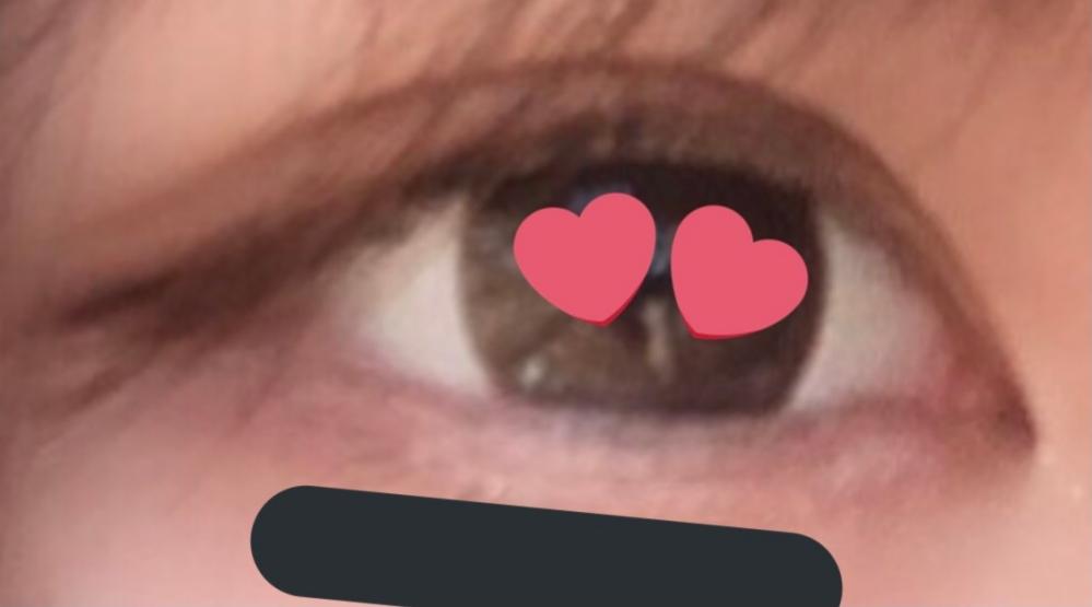 蒙古襞がよく分からないのですがこの目はあるんでしょうか?二重幅を広げてみたいのですが眠たそうな感じになってしまいます。