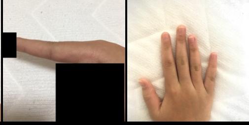 突き指?かもしれないです。 今日体育の授業で跳び箱をしたのですが、その時失敗して跳び箱に指をぶつけてしまいました。(一瞬のことだったのであまり覚えていないのですが、跳び箱のどこかにぶつけたのは確...
