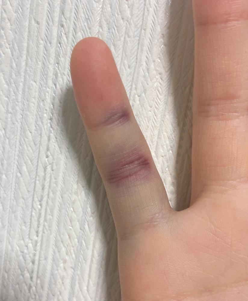 今日バスケの授業で突き指?をしたんですがこれって折れてたりしますか?