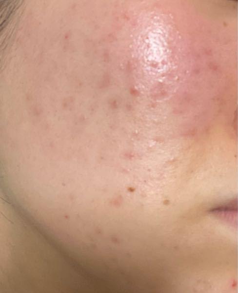 助けてください。 自分の肌のことがよくわからなくて何しても治りません。敏感肌だということはわかっていますが、Tゾーンの皮脂がすごいのでついつい洗ってしまいます。 頬は赤く、ニキビやニキビ跡などがすごいです。おでこもあごも同様です。 頬は何故かいつも赤くなります こんな汚い肌が嫌で嫌でたまりません。 洗顔は専科のパーフェクトホイップ (泡だけで洗うようにしてます) スキンケア アベンヌ化粧水、日によって(ニキビ跡が気になる日)ビタミンC美容液、ビタミンCクリーム いつもはアベンヌ化粧水+雪肌精のジェルクリーム 朝も洗顔してます。 皮膚科には忙しくて行くことが出来ていません。 アドバイスなどくださいお願い致します。