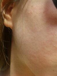 この肌のざらざらはどうすればキレイになりますか? ざらざらができる原因も、何なのかもわかりません。 肌は脂性です。頬は敏感&アダルトニ キビに悩んでいます。 このざらざらはニキビ跡の凹凸ではないです...
