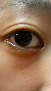 白い ぶつぶつ 目の下